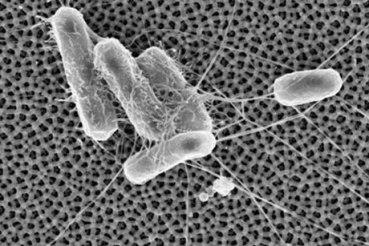 e coli id38647