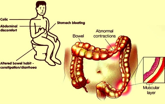 IBS-–-Pain-Location-Treatment-Causes-Symptoms-pictures